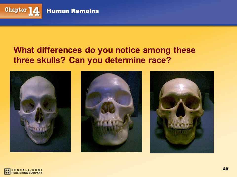 Chapter 12 Chapter 12. What differences do you notice among these three skulls Can you determine race