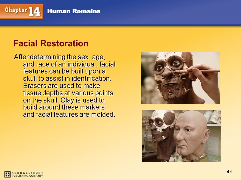 Chapter 12 Chapter 12. Facial Restoration.