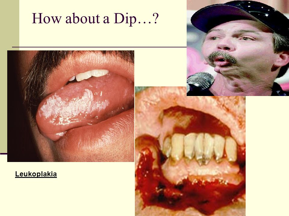 How about a Dip… Leukoplakia