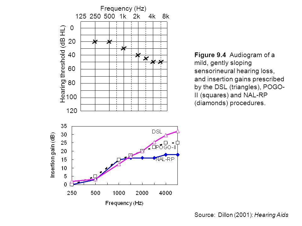 Hearing threshold (dB HL)
