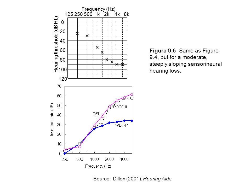 Frequency (Hz) Hearing threshold (dB HL) 250. 125. 500. 1k. 2k. 4k. 8k. 20. 40. 60. 80. 100.