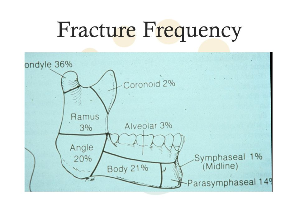 Fracture Frequency