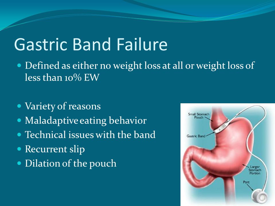 Gastric Band Failure Defined as either no weight loss at all or weight loss of less than 10% EW. Variety of reasons.