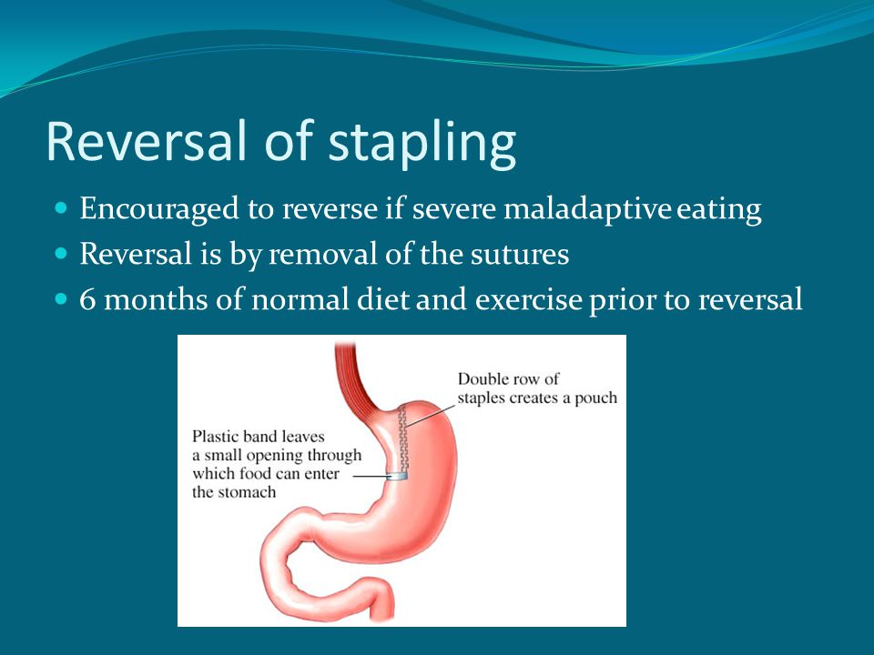 Reversal of stapling Encouraged to reverse if severe maladaptive eating. Reversal is by removal of the sutures.
