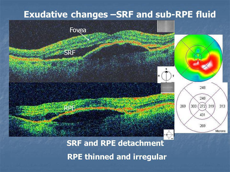 Exudative changes –SRF and sub-RPE fluid