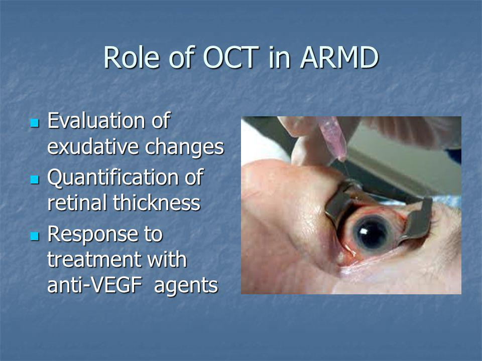 Role of OCT in ARMD Evaluation of exudative changes