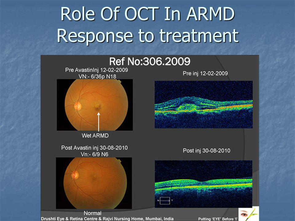 Role Of OCT In ARMD Response to treatment