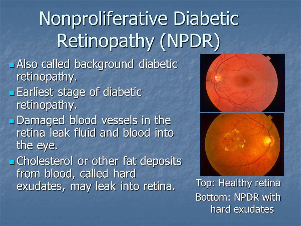 Nonproliferative Diabetic Retinopathy (NPDR)
