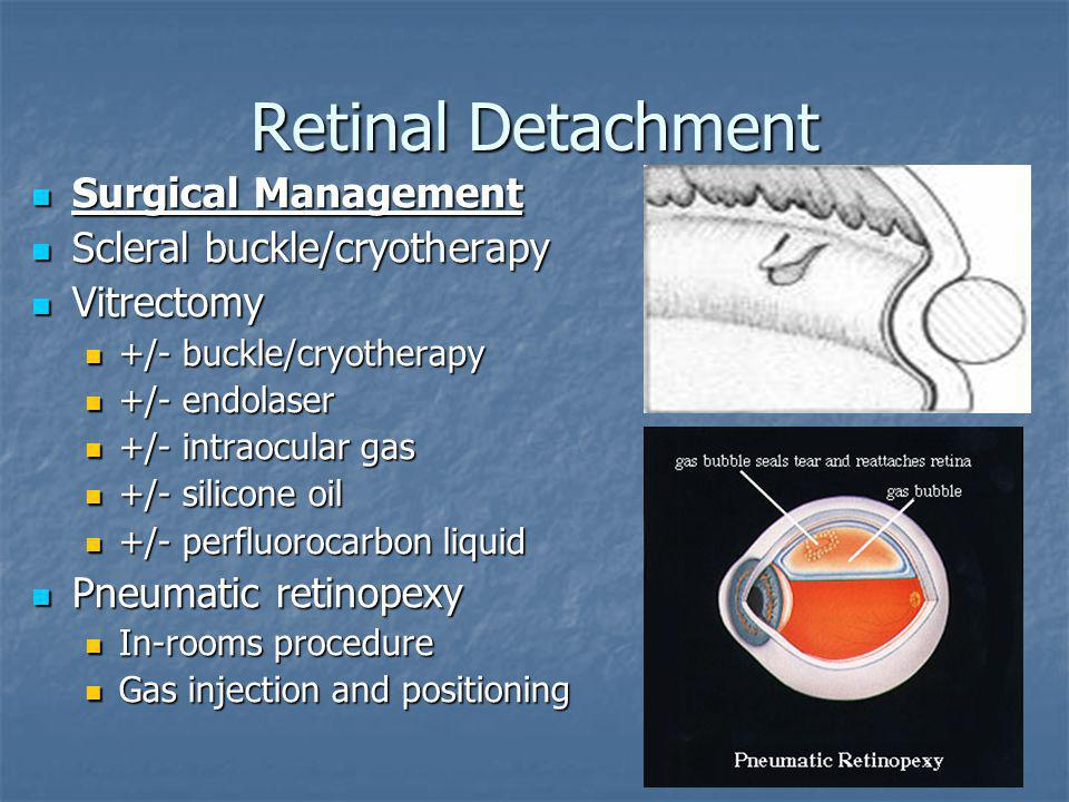 Retinal Detachment Surgical Management Scleral buckle/cryotherapy