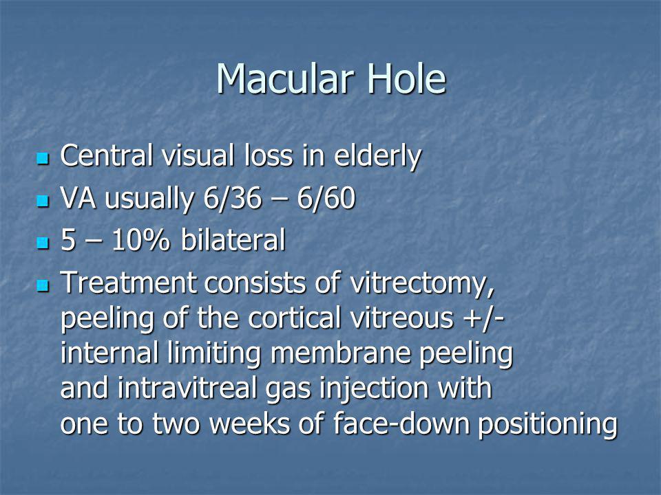 Macular Hole Central visual loss in elderly VA usually 6/36 – 6/60