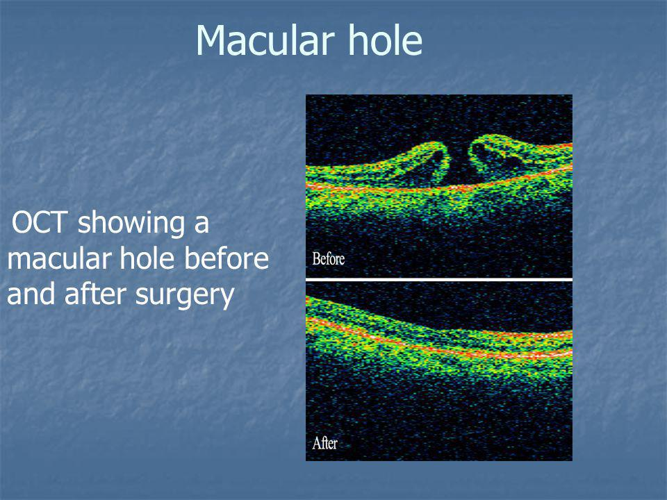 Macular hole OCT showing a macular hole before and after surgery