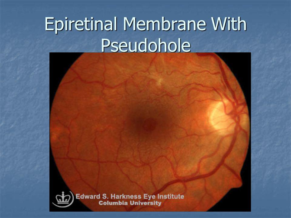 Epiretinal Membrane With Pseudohole