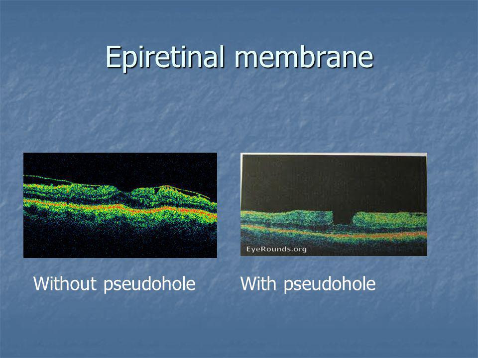 Epiretinal membrane Without pseudohole With pseudohole