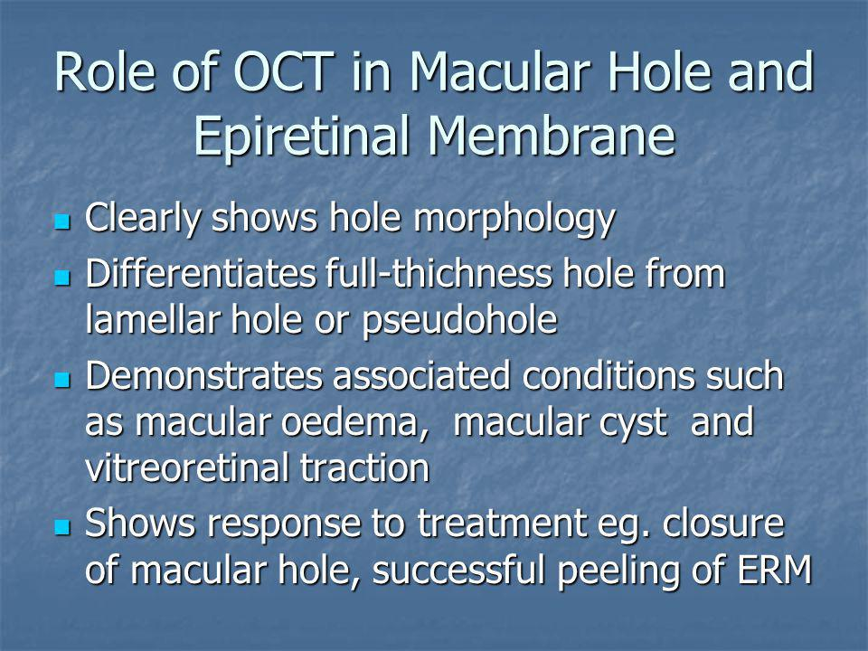 Role of OCT in Macular Hole and Epiretinal Membrane