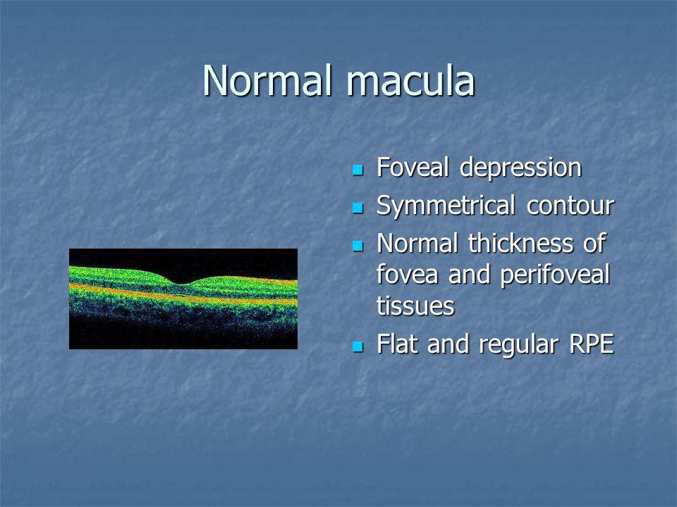 Normal macula Foveal depression Symmetrical contour