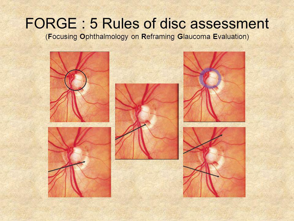 FORGE : 5 Rules of disc assessment (Focusing Ophthalmology on Reframing Glaucoma Evaluation)