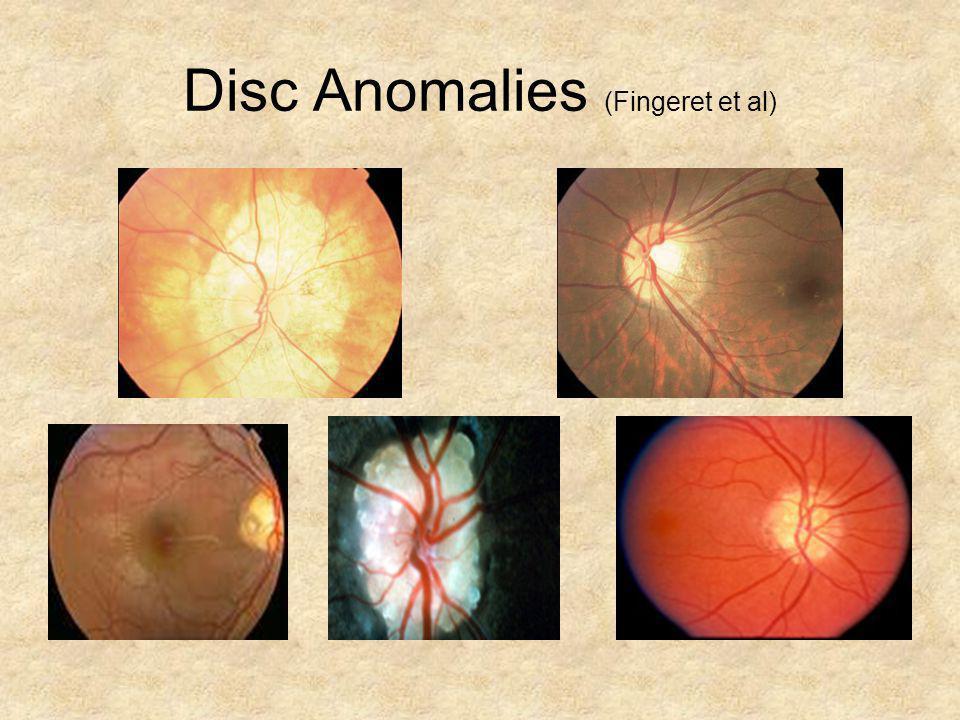 Disc Anomalies (Fingeret et al)
