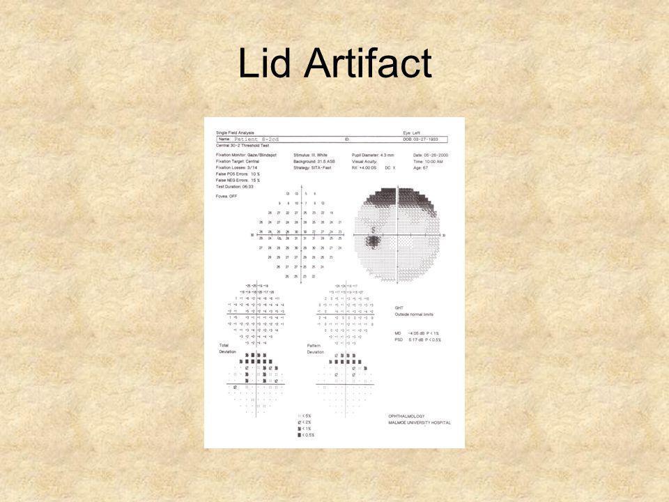 Lid Artifact