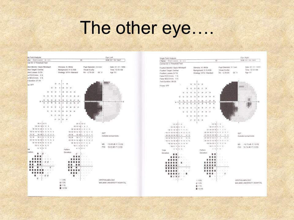 The other eye….