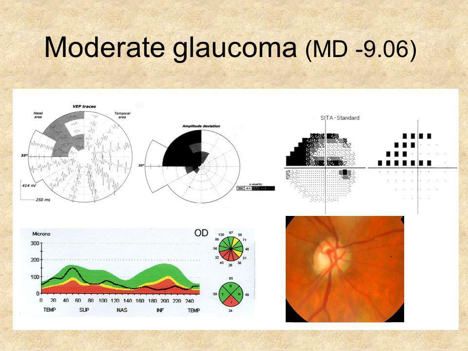 Moderate glaucoma (MD -9.06)