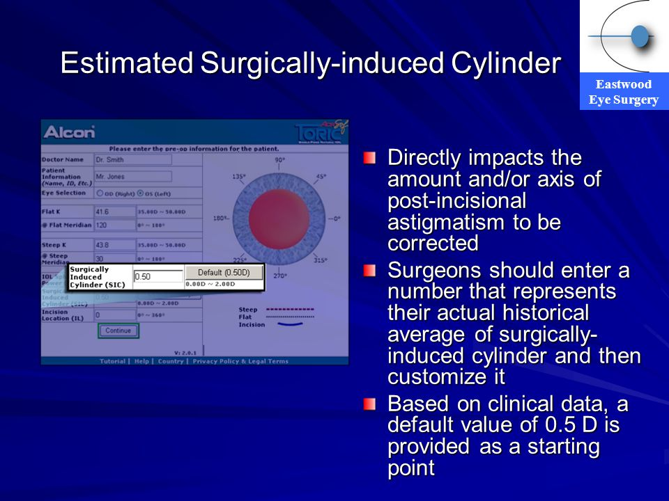 Estimated Surgically-induced Cylinder