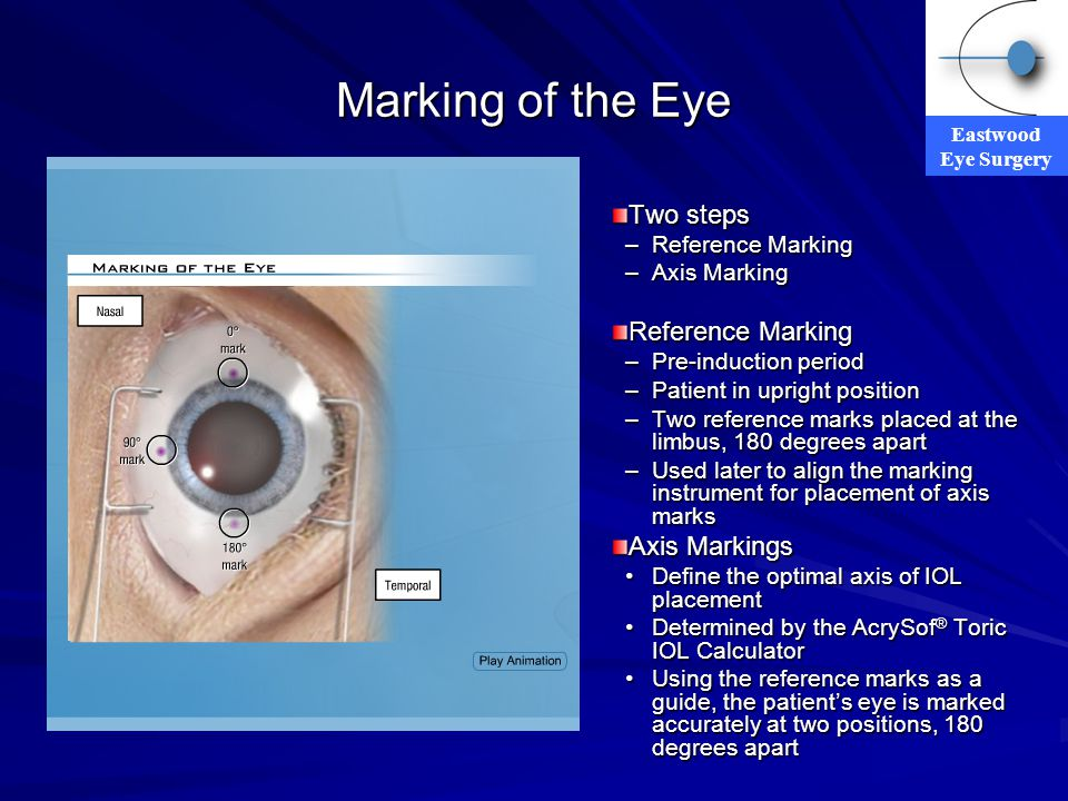 Marking of the Eye Two steps Axis Markings Reference Marking