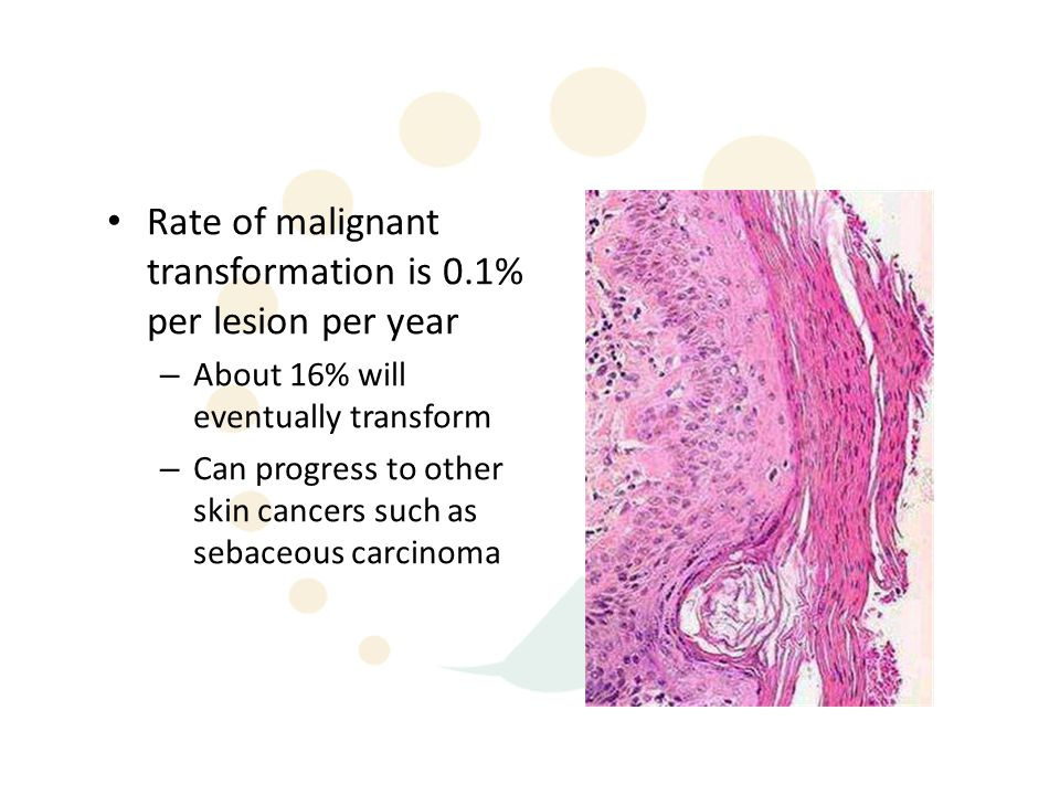 Rate of malignant transformation is 0.1% per lesion per year