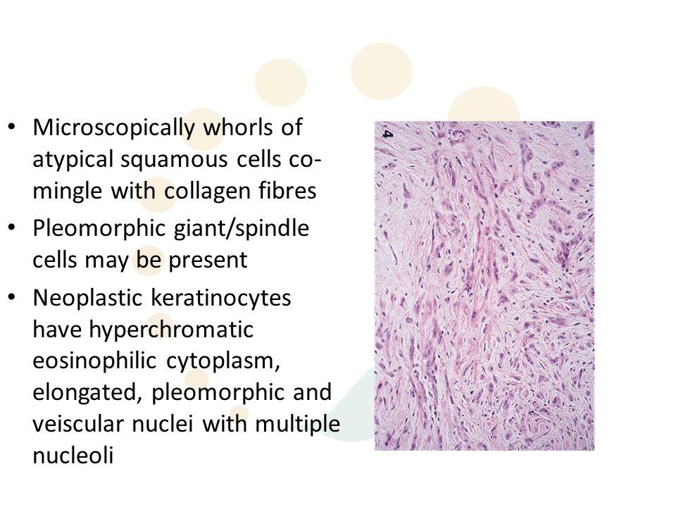 Microscopically whorls of atypical squamous cells co-mingle with collagen fibres
