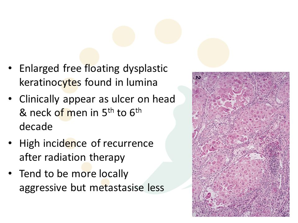 Enlarged free floating dysplastic keratinocytes found in lumina