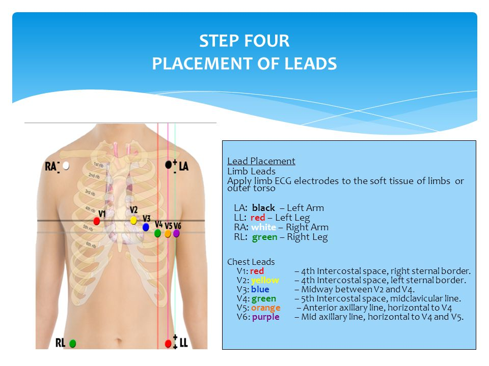 STEP FOUR PLACEMENT OF LEADS