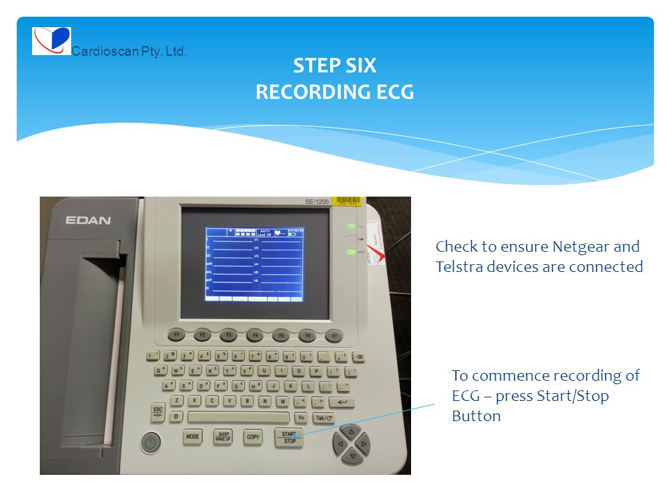 STEP SIX RECORDING ECG Check to ensure Netgear and