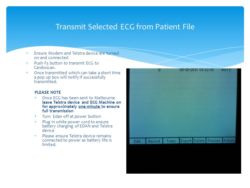 Transmit Selected ECG from Patient File