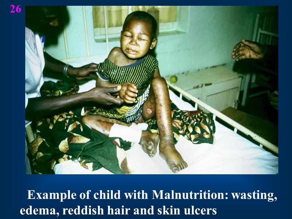 26 Example of child with Malnutrition: wasting, edema, reddish hair and skin ulcers