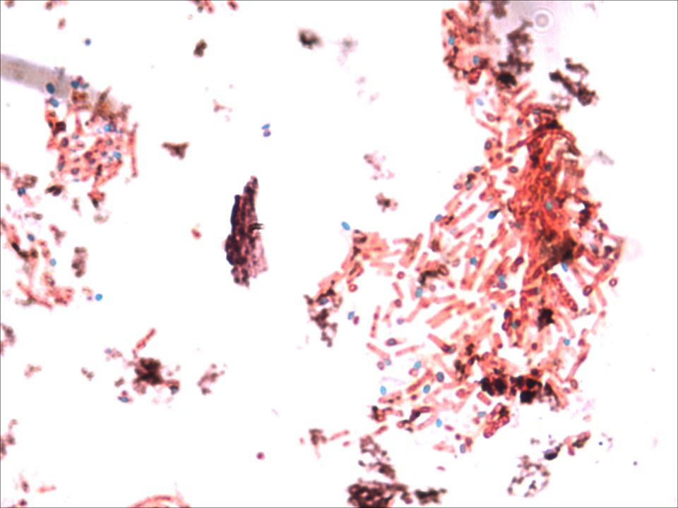 Acid fast stain from oral smear spiked with Mycobacterium phlei (In house pict)