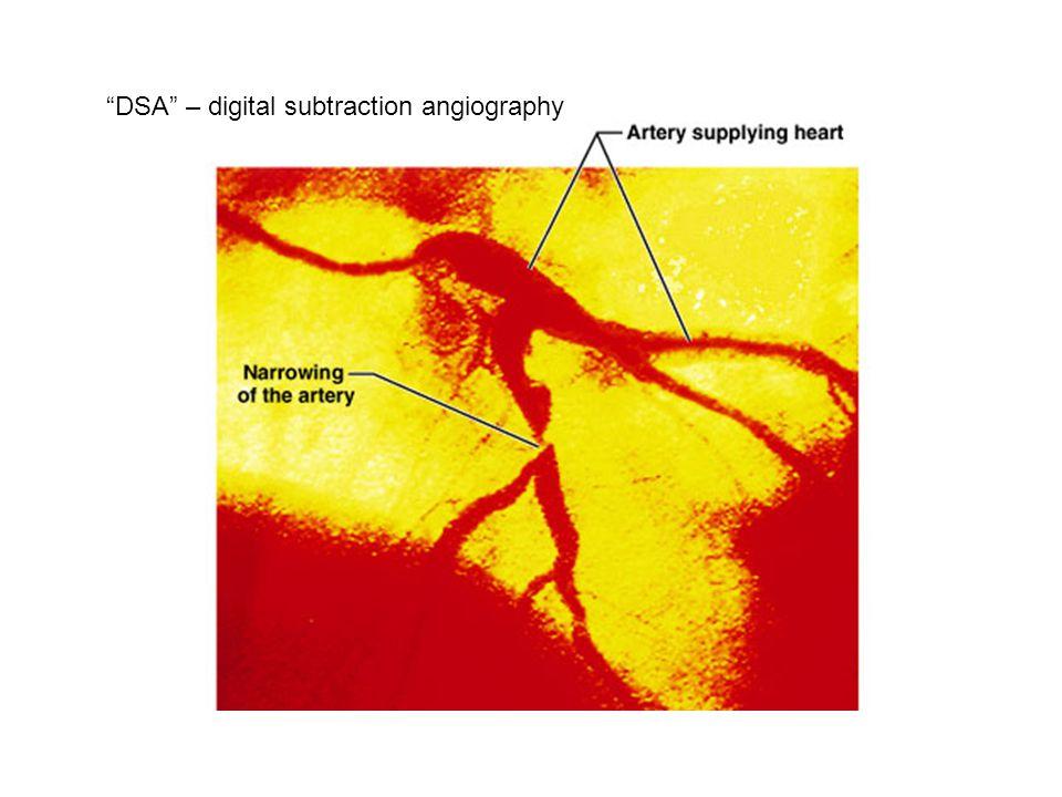 DSA – digital subtraction angiography