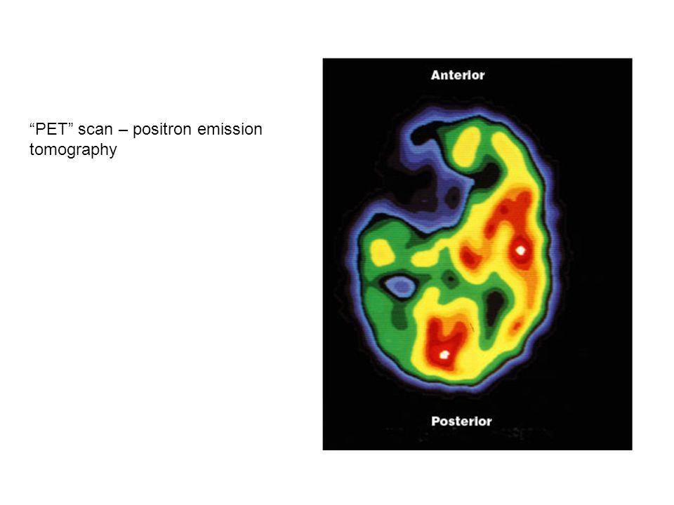PET scan – positron emission tomography