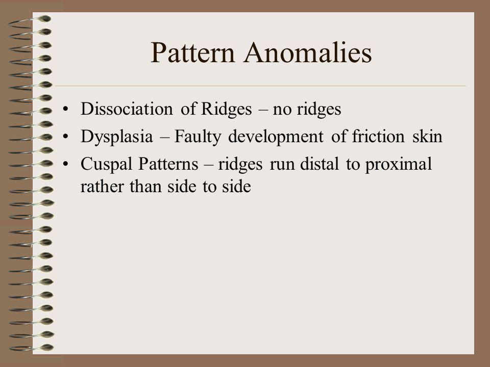 Pattern Anomalies Dissociation of Ridges – no ridges