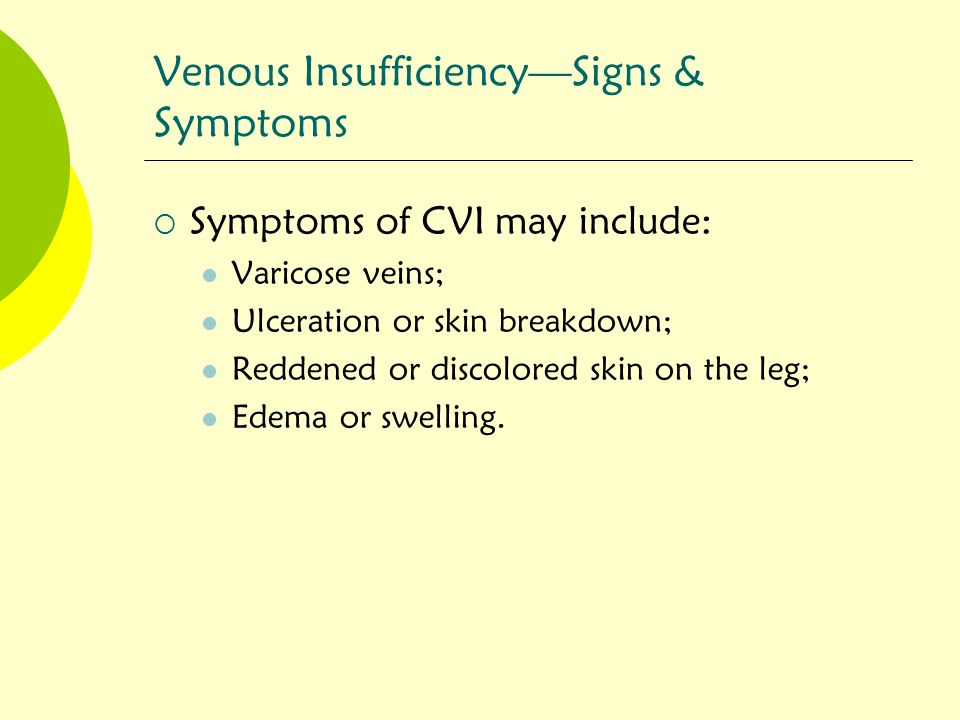 Venous Insufficiency—Signs & Symptoms