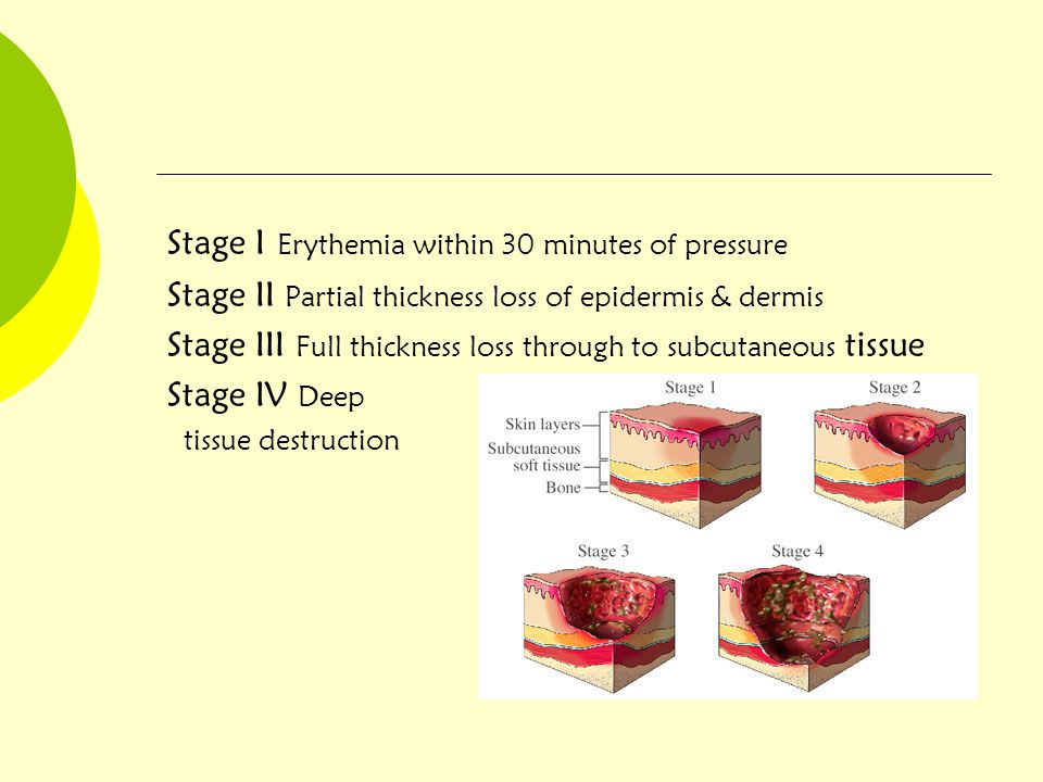Stage I Erythemia within 30 minutes of pressure