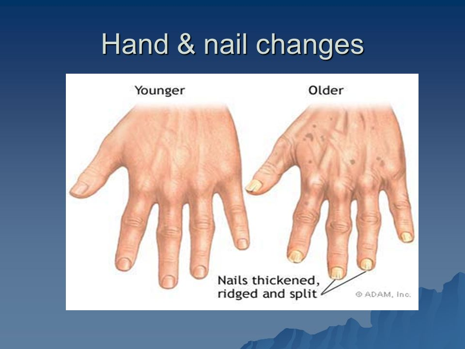Hand & nail changes