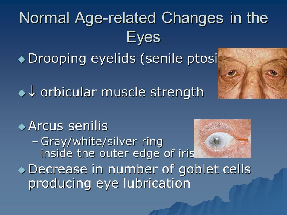 Normal Age-related Changes in the Eyes