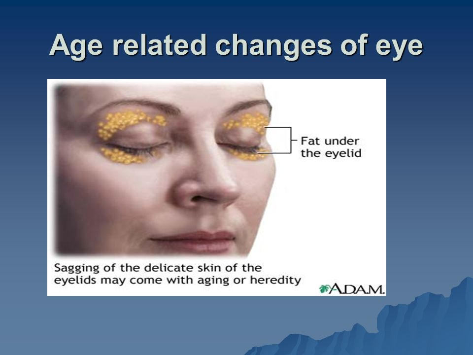 Age related changes of eye