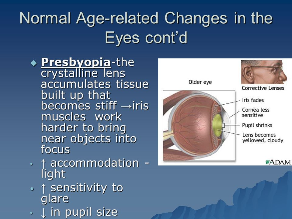 Normal Age-related Changes in the Eyes cont'd