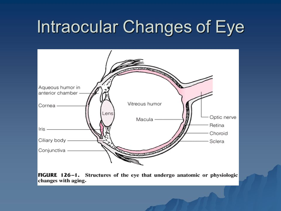 Intraocular Changes of Eye