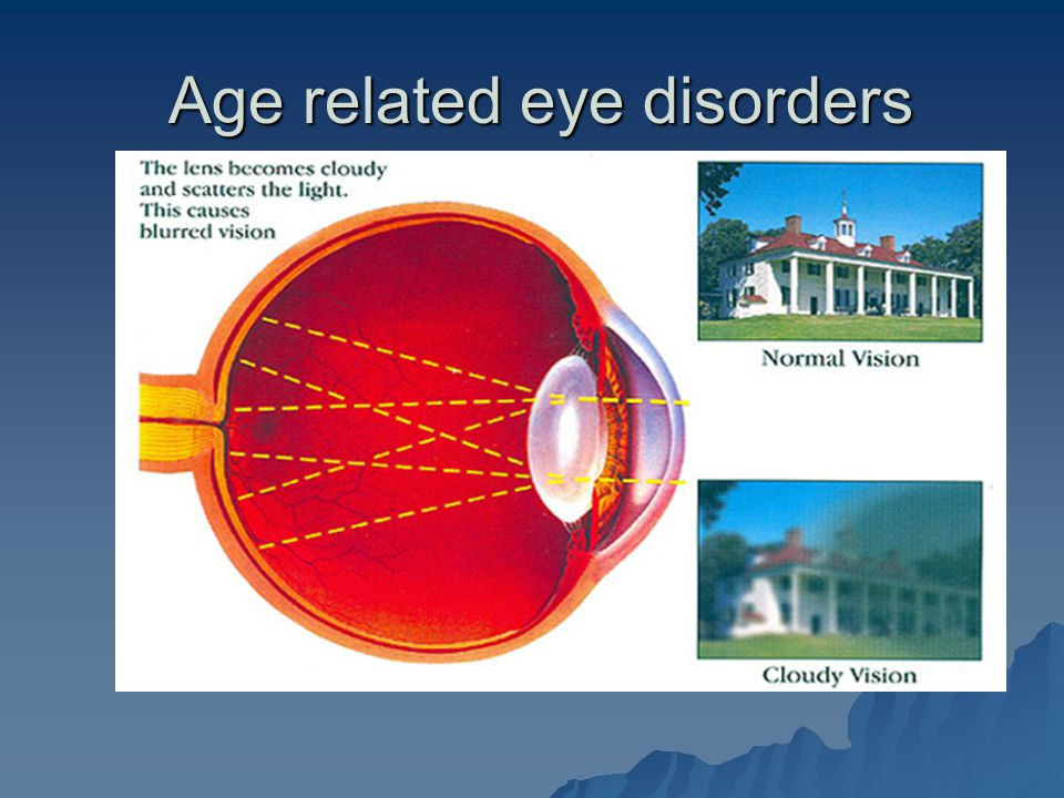 Age related eye disorders