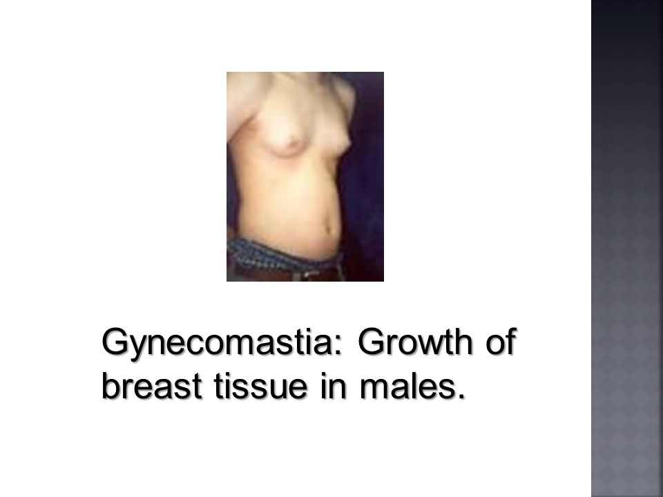 Gynecomastia: Growth of breast tissue in males.