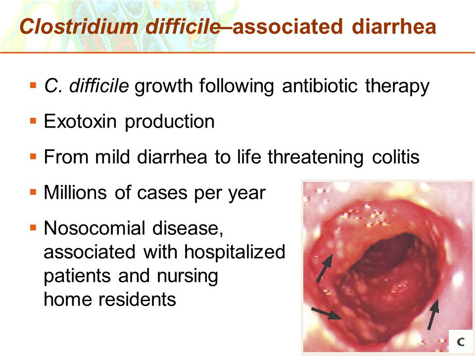 Clostridium difficile–associated diarrhea