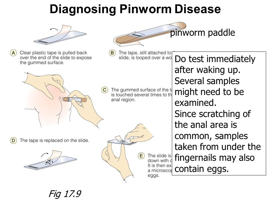 Diagnosing Pinworm Disease