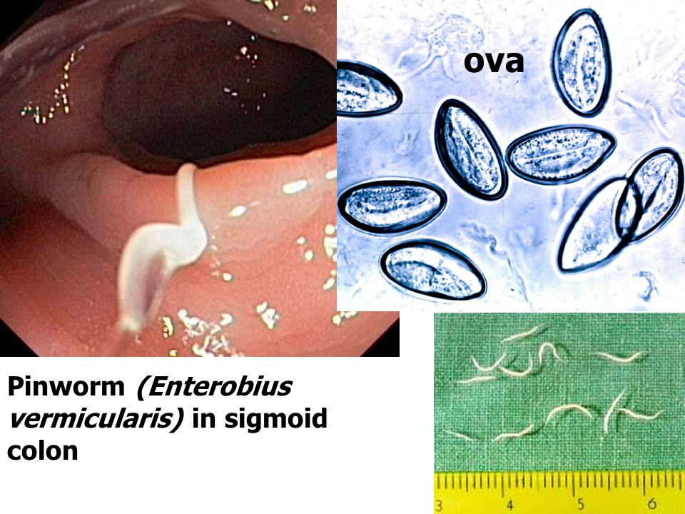 ova Pinworm (Enterobius vermicularis) in sigmoid colon