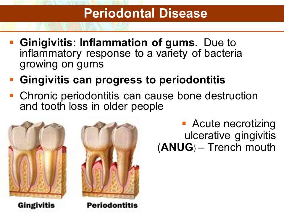 Periodontal Disease Ginigivitis: Inflammation of gums. Due to inflammatory response to a variety of bacteria growing on gums.
